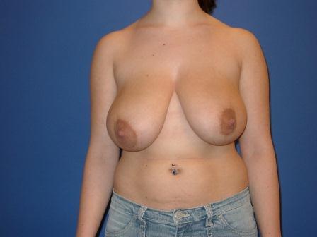 Die Rezensionen der besten Cremes für die Brust