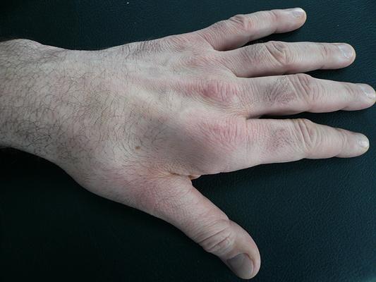 Sulcus ulnaris syndrom op wie lange krank - senmutouchshep