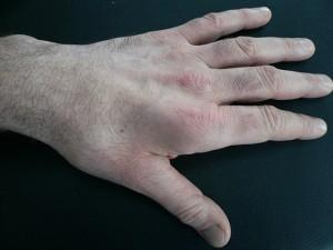 Sulcus-Ulnaris-Syndrom Muskelschwund